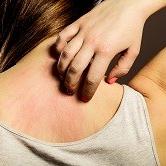 peau - TMD Environnement