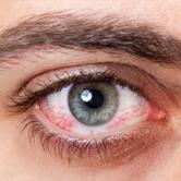 yeux - TMD Environnement